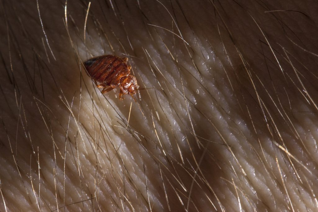 How to Check for Head Lice  The Survival Doctor